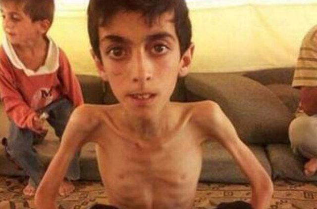 Suriye Madaya'da yaşanan açlık